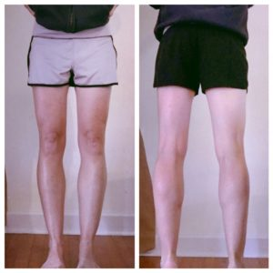 Rob legs